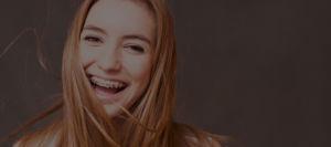 aparaty ortodontyczne, Cena Aparatu Ortodontycznego, ortodoncja