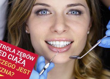 Przed zajściem w ciążę trzeba zbadać zęby. Zaniedbanie jest niebezpieczne