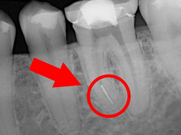 Usuwanie złamanego narzędzia z zęba – resekcja korzenia